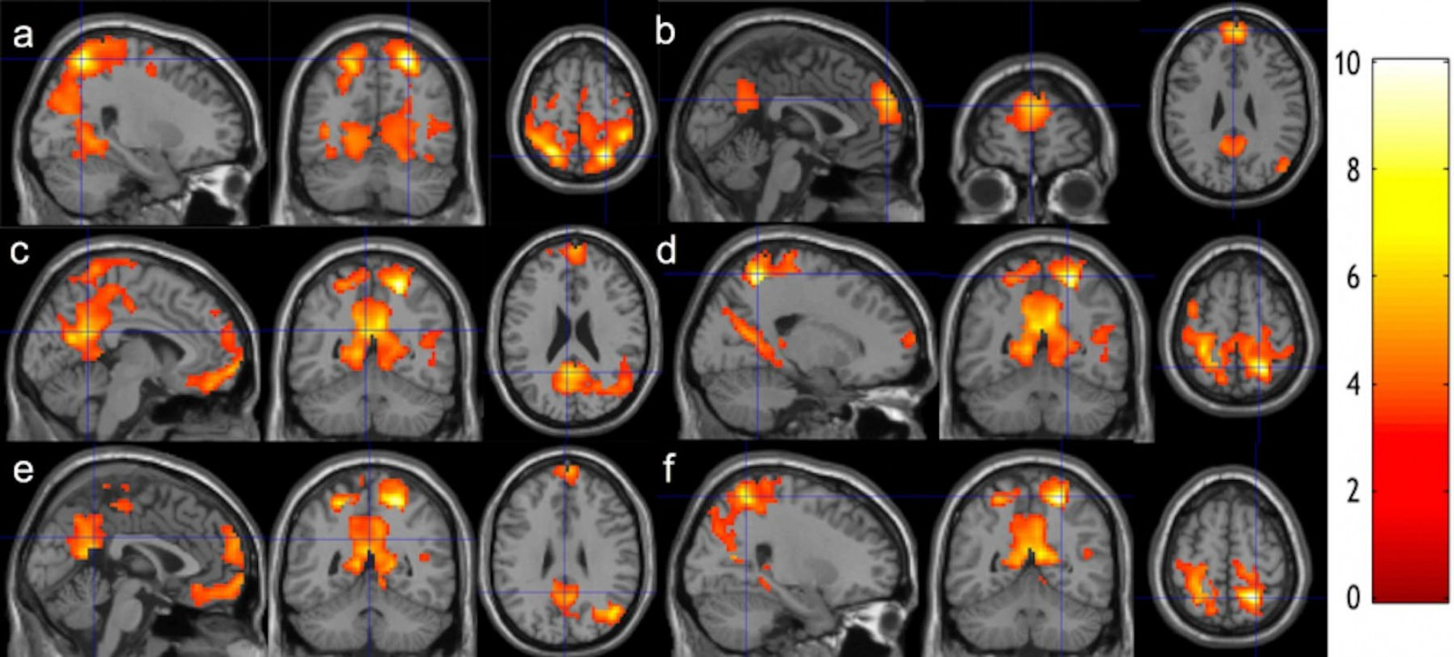 Researchers at Binghamton University scanned students' brains before and after eight weeks of meditation training.